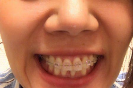 歯列矯正で感動を✨